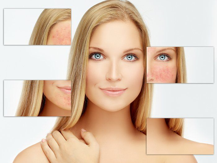Tips to get the best results of facial