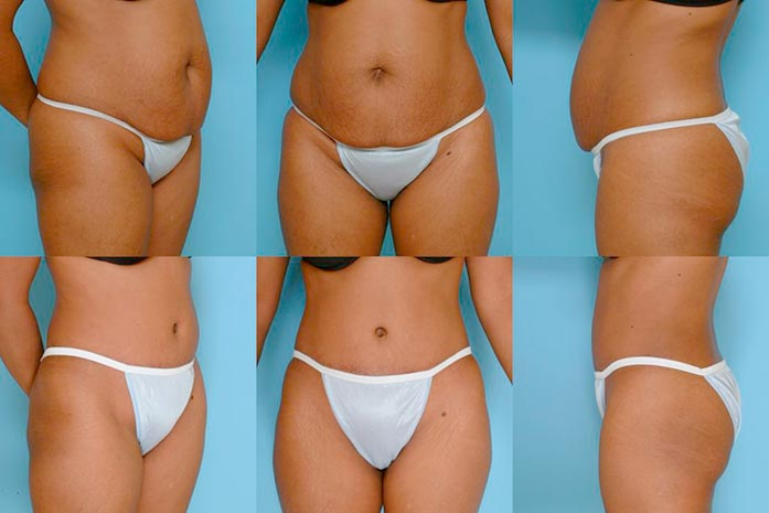 Top 3 reasons why getting a tummy tuck is so highly recommended